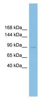 Western blot - Anti-XRRA1 antibody (ab102681)