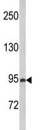 Western blot - Anti-PREX1 antibody (ab102739)