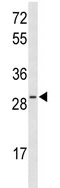 Western blot - Anti-HES6 antibody (ab102823)