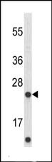 Western blot - Anti-ABHD14B antibody (ab102950)