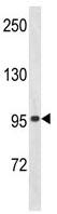 Western blot - Anti-ZFP100 / ZNF473 antibody (ab103023)