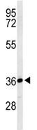 Western blot - Anti-SIA8D antibody (ab103036)