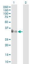 Western blot - Anti-Cer1 antibody (ab103122)