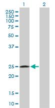 Western blot - Anti-RAB32 antibody (ab103160)