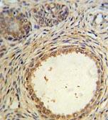 Immunohistochemistry (Formalin/PFA-fixed paraffin-embedded sections) - Anti-AMH antibody (ab103233)