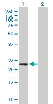 Western blot - Anti-ARL11 antibody (ab103297)