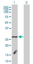 Western blot - Anti-FBXL18 antibody (ab103361)