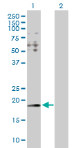 Western blot - Anti-HYI antibody (ab103362)