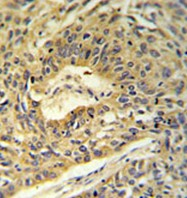 Immunohistochemistry (Formalin/PFA-fixed paraffin-embedded sections) - Anti-ATP5A antibody (ab103431)