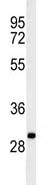 Western blot - Anti-C19orf18 antibody (ab103434)
