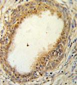 Immunohistochemistry (Formalin/PFA-fixed paraffin-embedded sections) - Anti-HAPLN1 antibody (ab103455)