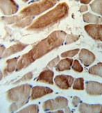 Immunohistochemistry (Formalin/PFA-fixed paraffin-embedded sections) - Anti-MMAA antibody (ab103459)