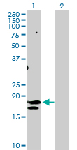 Western blot - Anti-CD75 antibody (ab103472)