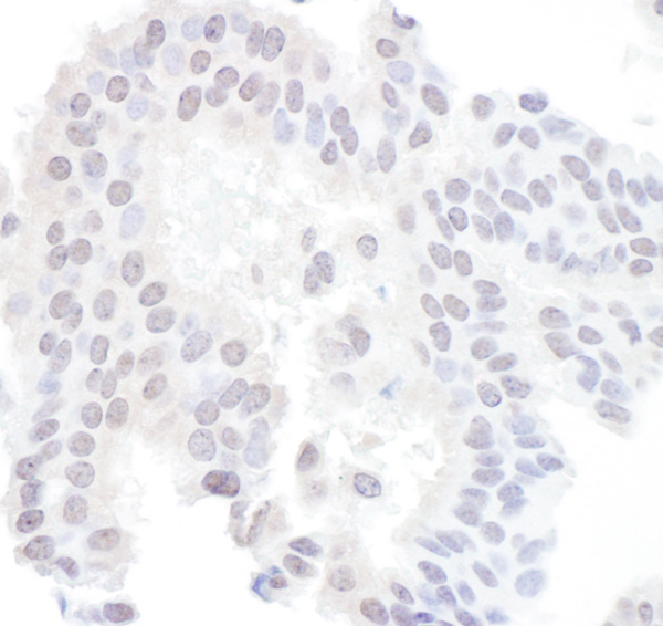 Immunohistochemistry (Formalin/PFA-fixed paraffin-embedded sections) - Anti-SAE1 antibody (ab103522)
