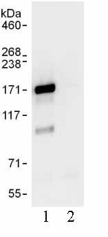 Immunoprecipitation - Anti-UBPY/USP8 antibody (ab103524)