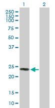 Western blot - Anti-DSU antibody (ab103611)