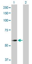 Western blot - Anti-CNDP2 antibody (ab103612)