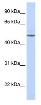 Western blot - Anti-beta 1 Adrenergic Receptor antibody (ab103653)