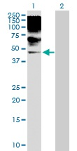 Western blot - Anti-RRAGB antibody (ab103671)