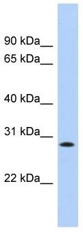 Western blot - Anti-KCTD17 antibody (ab103802)