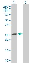 Western blot - Anti-XRCC6BP1 antibody (ab103823)