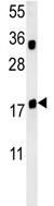Western blot - Anti-TRAPPC6A antibody (ab103844)