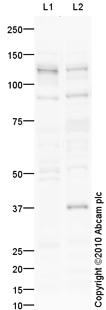 Western blot - Anti-TDRD7 antibody (ab103866)