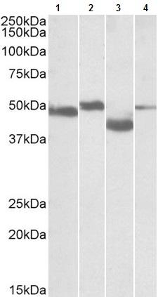Western blot - Anti-MEIS2 antibody (ab103912)