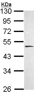 Western blot - Anti-HYAL1 antibody (ab103977)