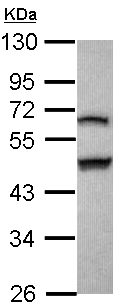 Western blot - Anti-GSDMB antibody (ab103980)