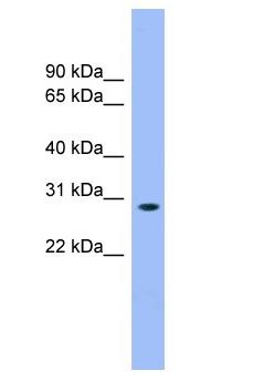 Western blot - Anti-MASA antibody (ab103982)