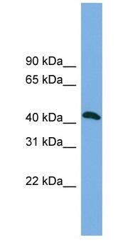 Western blot - Anti-ANKMY2 antibody (ab103986)