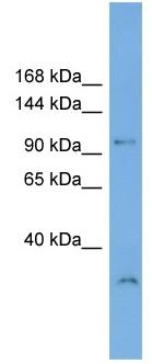 Western blot - Anti-DENND1A antibody (ab103987)