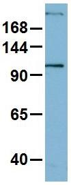 Western blot - Anti-MYH1 antibody (ab104128)