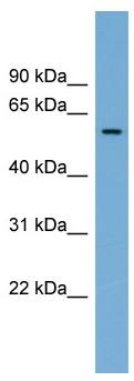 Western blot - Anti-IFI44 antibody (ab104197)