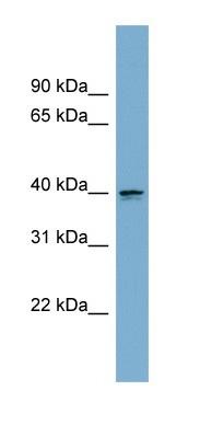 Western blot - Anti-ASPHD2 antibody (ab104198)
