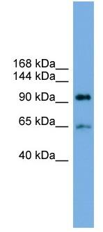 Western blot - Anti-EXOC6 antibody (ab104200)