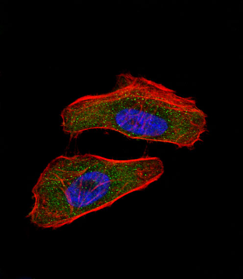 Immunofluorescence - Anti-HIF-1-alpha antibody (ab104263)
