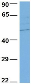 Western blot - Anti-VAT1 antibody - N-terminal (ab104318)