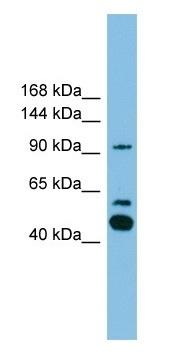 Western blot - Anti-PLA2G4E antibody (ab104326)