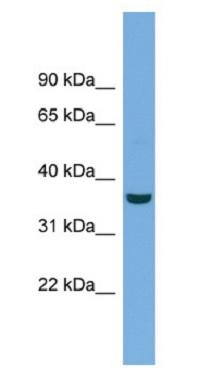 Western blot - Anti-mu Crystallin antibody (ab104328)