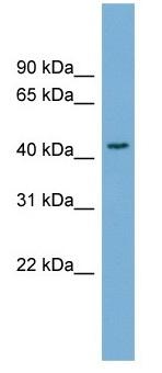 Western blot - Anti-SERPINB4 antibody (ab104338)