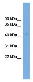 Western blot - Anti-Cyt 19 antibody (ab104342)