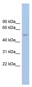 Western blot - Anti-ANKRD13D antibody (ab104347)