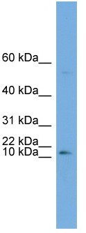 Western blot - Anti-ATP6V0C antibody (ab104374)
