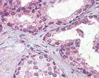 Immunohistochemistry (Formalin/PFA-fixed paraffin-embedded sections) - Anti-IFNAR2 antibody (ab104451)