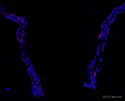 Immunocytochemistry/ Immunofluorescence - Anti-ADAMTSL3 antibody (ab104507)