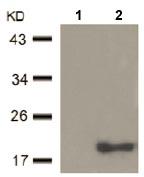 Western blot - Anti-ZCCHC10 antibody (ab104631)