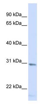 Western blot - Anti-SMUG1 antibody (ab104663)