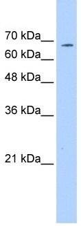 Western blot - CD42b antibody (ab104704)